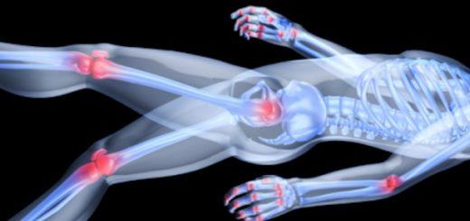 Arthritis Body Point for Mattress